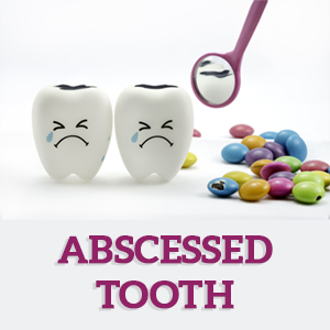 abscessed-tooth