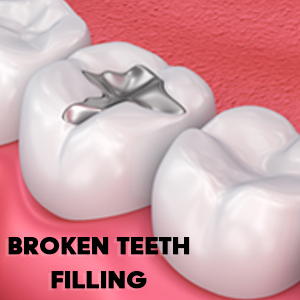 tooth-filling