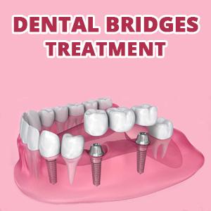 bridge dental treatment