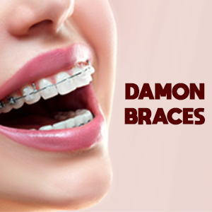 damon-braces