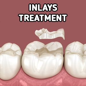 tooth-inlay