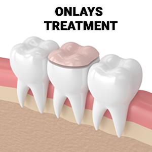dental-onlay