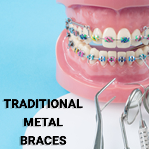 Orthodontic services - traditional metal braces