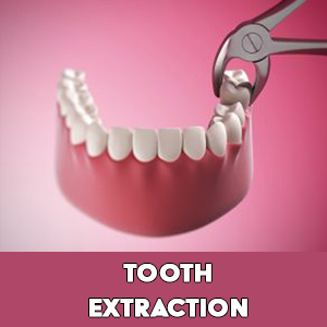 Maxillofacial and oral surgeon - tooth extraction